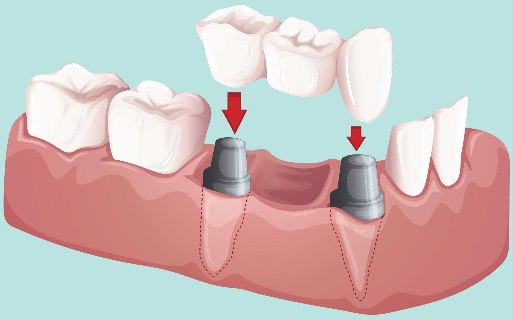 Get a Dental Bridge | Partial Bridge | Fixed Bridge | Visalia CA