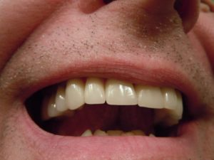 What is a dental crown?