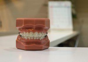 is gingivitis treatable