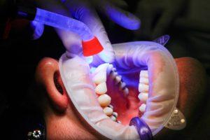 Dr. Andrew Ross, DDS Visalia Dentist